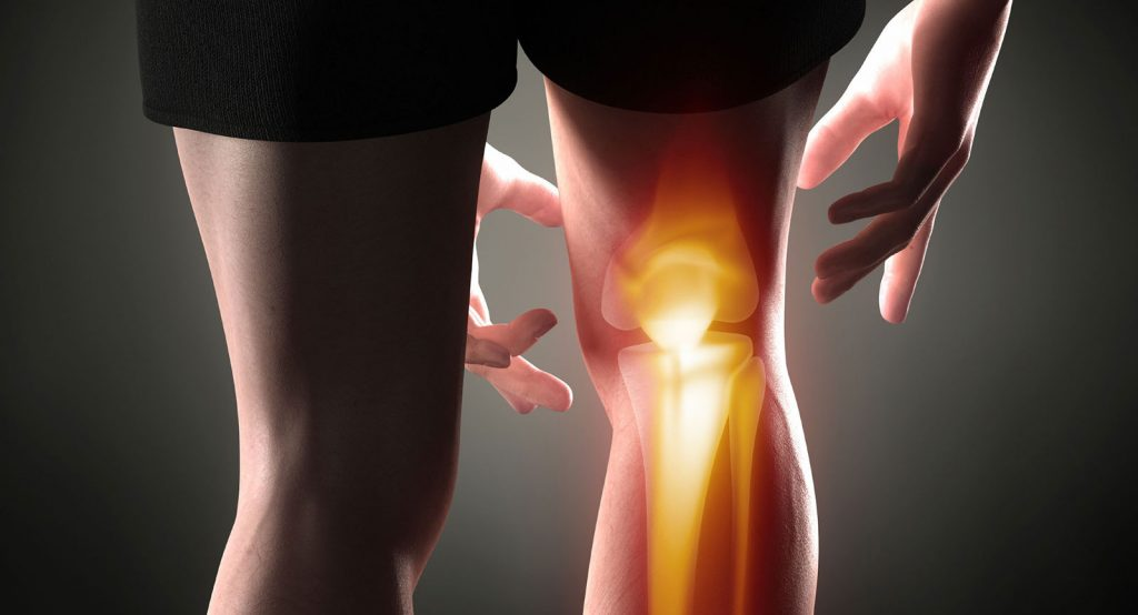 photo of a man with right knee bones highlighted to show painful area