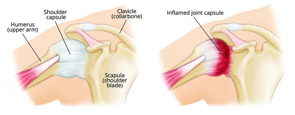 diagram showing frozen shoulder adhesive capsulitis