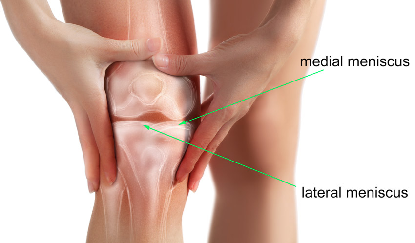 diagram of the knee showing medial and lateral meniscus