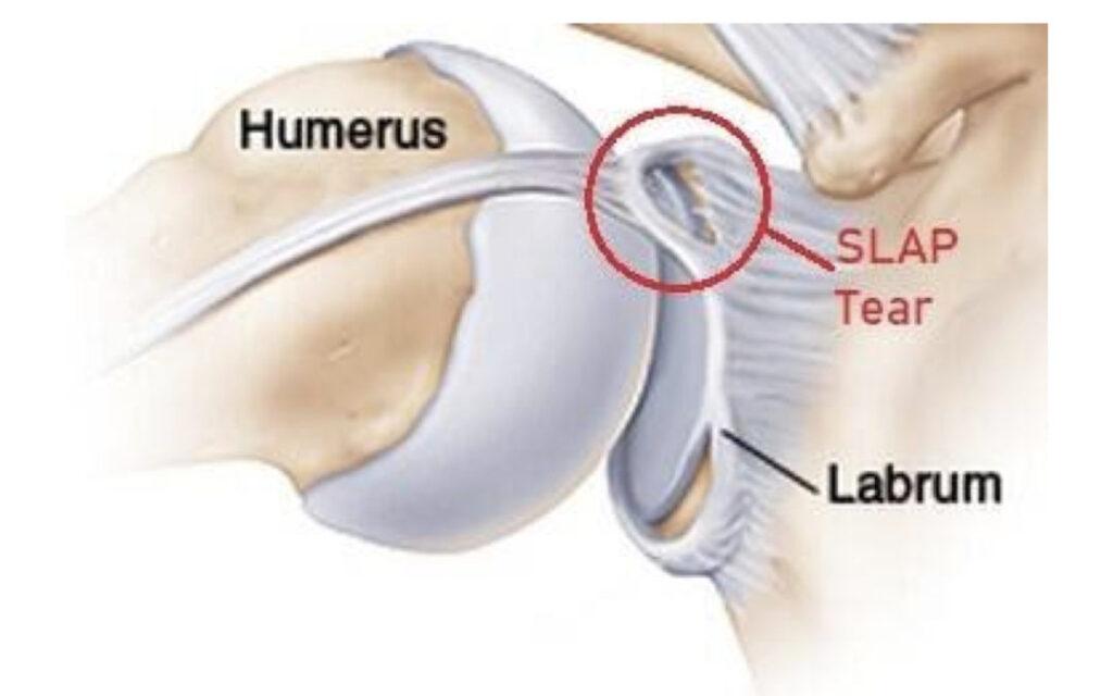 diagram of a shoulder labrum tear
